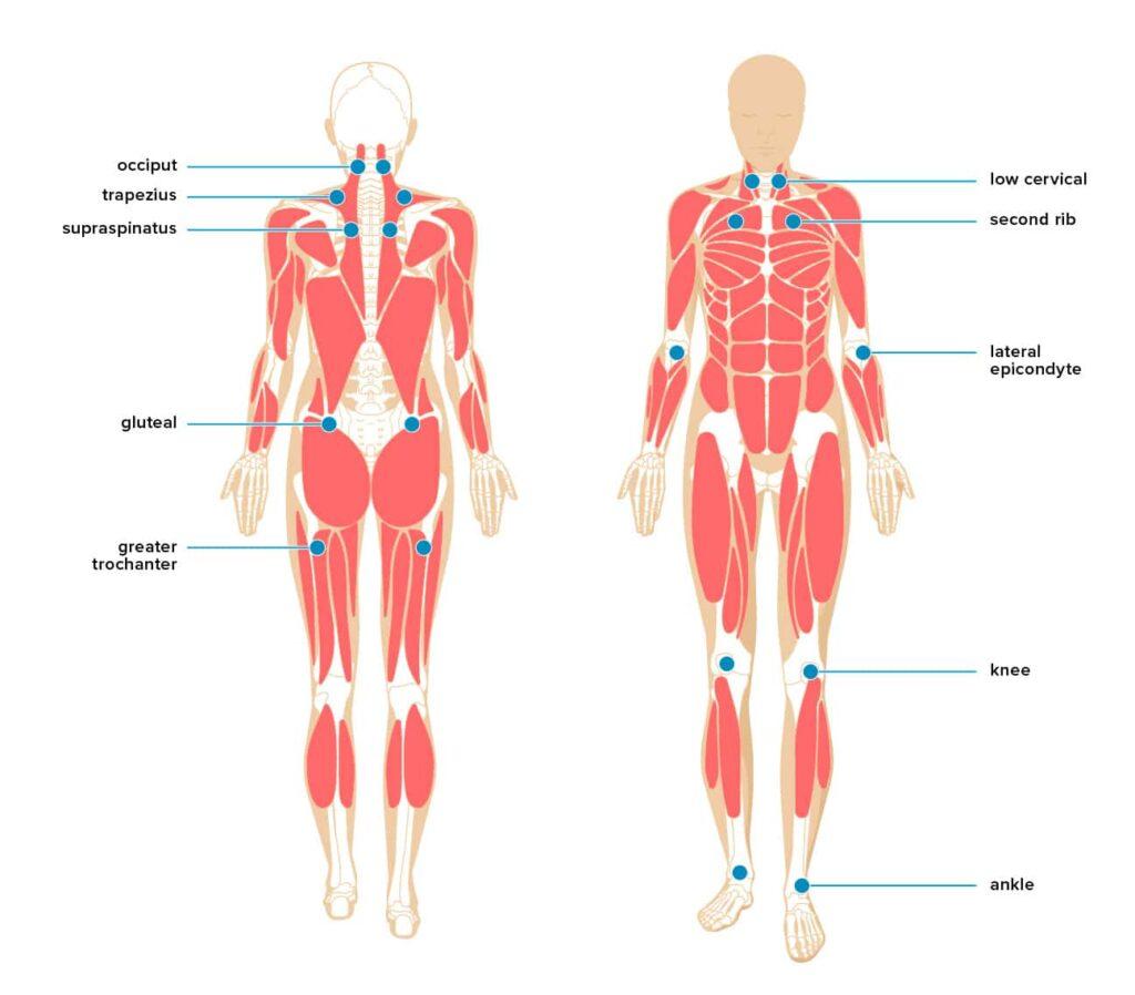 myofascial trigger point chart